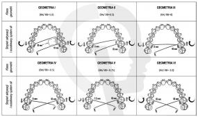 Klasy geometrii Burstone'a w zastosowaniu TPA