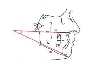 Ocena siły żucia u pacjentów z wysokokątową wertykalną relacją podstaw szczęk i czaszki